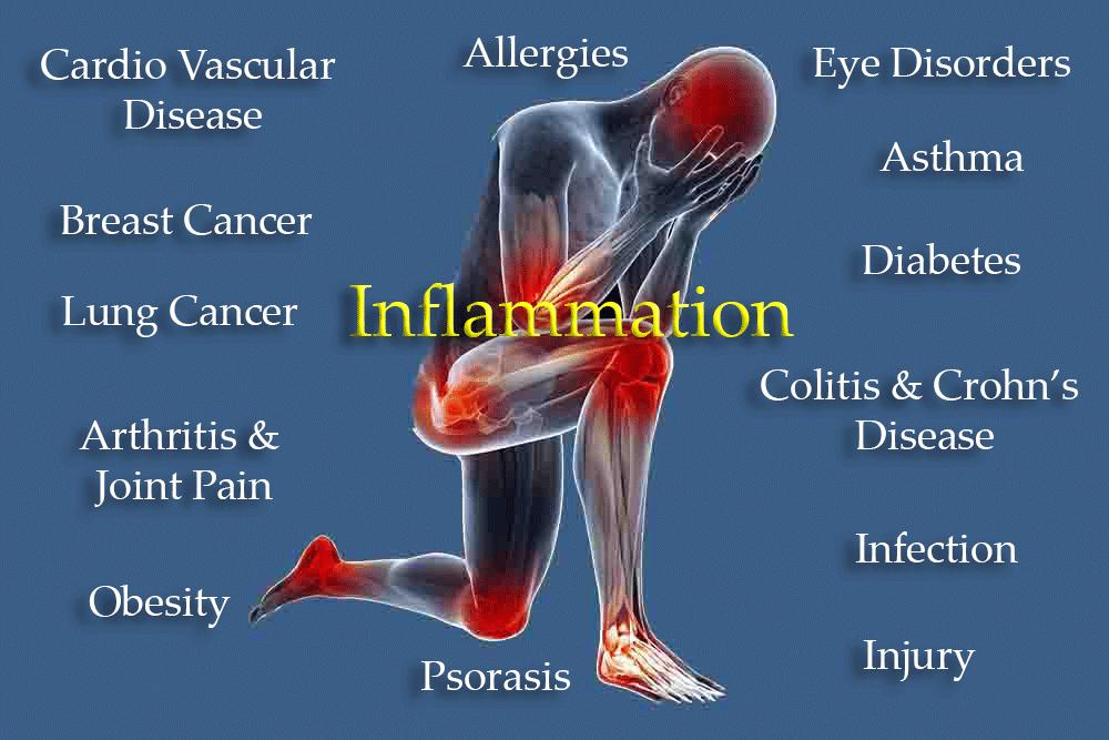 Inflammaatio